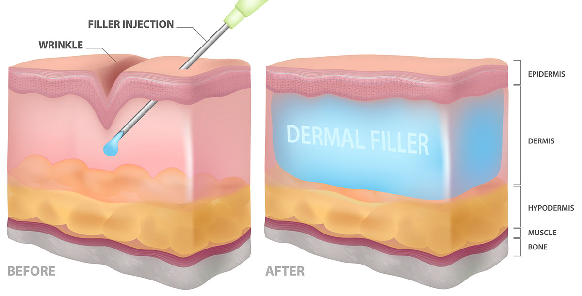 Image showing Dermal Fillers treatment