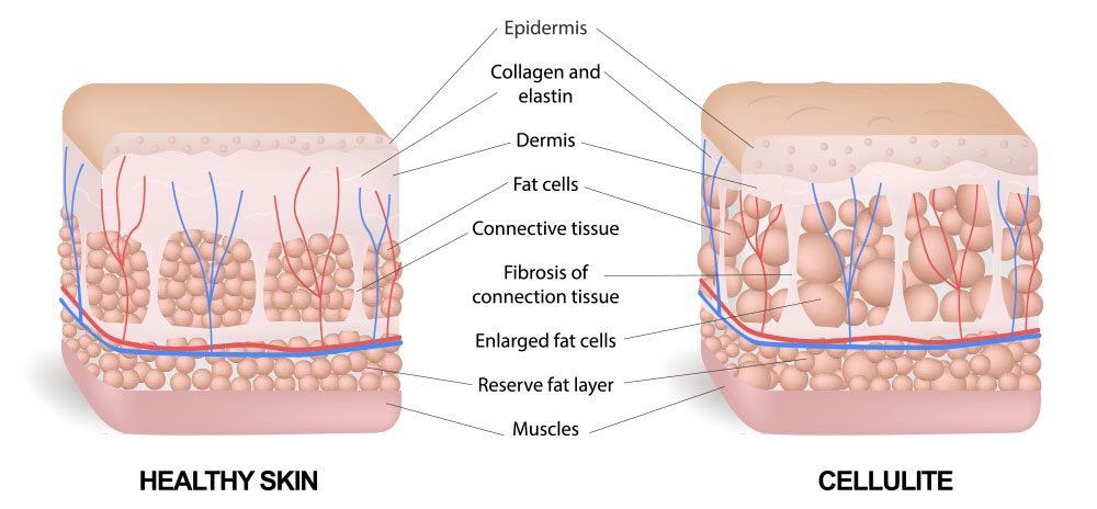 Image showing Cellulite Treatment treatment