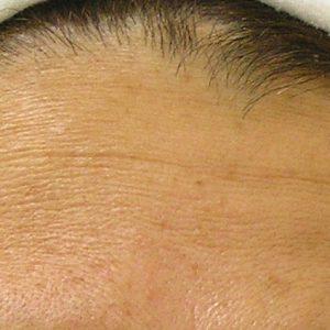 Before photo - Hydrafacial: Forehead