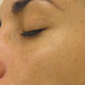 Before photo - Hydrafacial: Hyperpigmentation