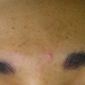 Before photo - Hydrafacial: Sun Damaged Forehead