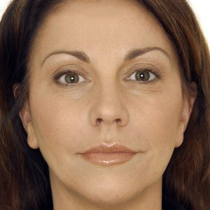Before photo - Dermal Fillers: Eyes and Mouth