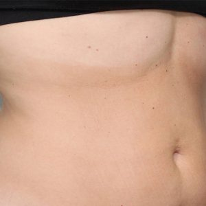 Before photo - Body Contouring: Stomach