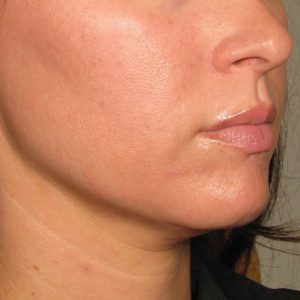 Before photo - Ultherapy: Neck and Chin