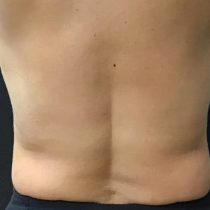 Before photo - Body Contouring: Lower Back