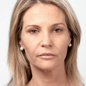 Before photo - Facelift: Cheeks and Forehead
