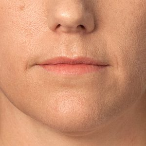 Before photo - Ultherapy: Chin Area