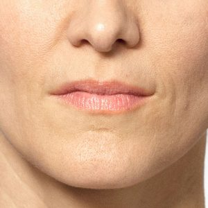 Before photo - Facelift: Mouth Area