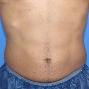 Before photo - Muscle Sculpting with TruSculpt Flex: Abdomen